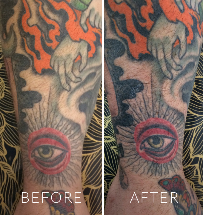 Tatul_Before and After_3.jpg