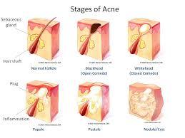Acne treatment estevan laser health clinic acne diagramg ccuart Gallery