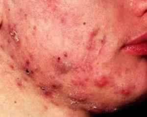 Type 4 acne.jpg