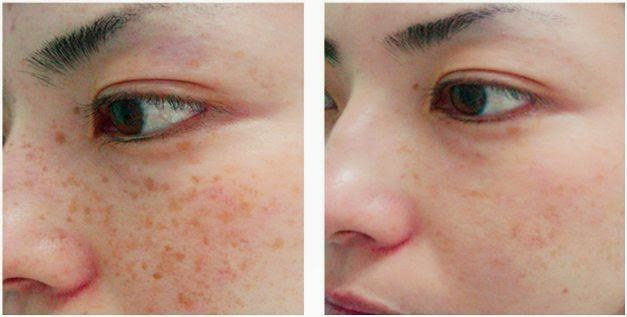 skin-rejuvenation 6.jpeg
