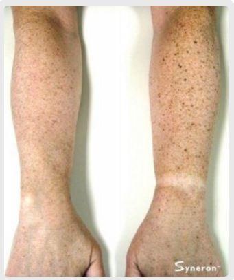 skin-rejuvenation-5.jpg