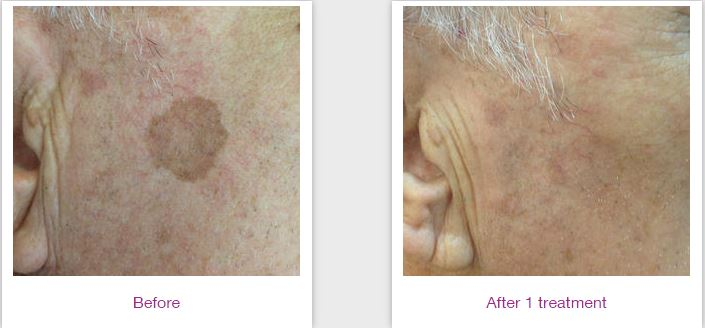 skin rejuvenation 4.jpg