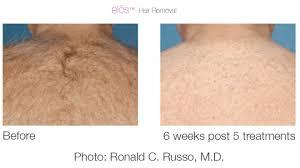 hair removal 1.jpg