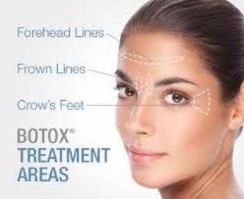 Botox treatment areas.jpg