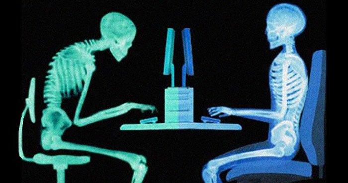 Neuro-sitting-spine-xray.jpg