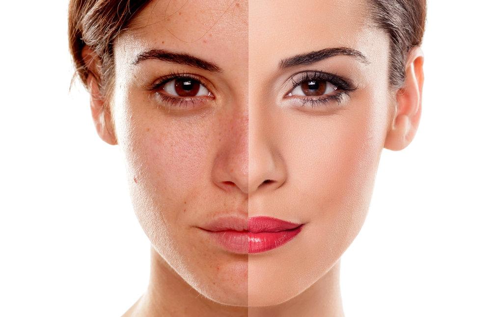 Blue Velvet | Staten Island, NY | Skin Care | Facials ...