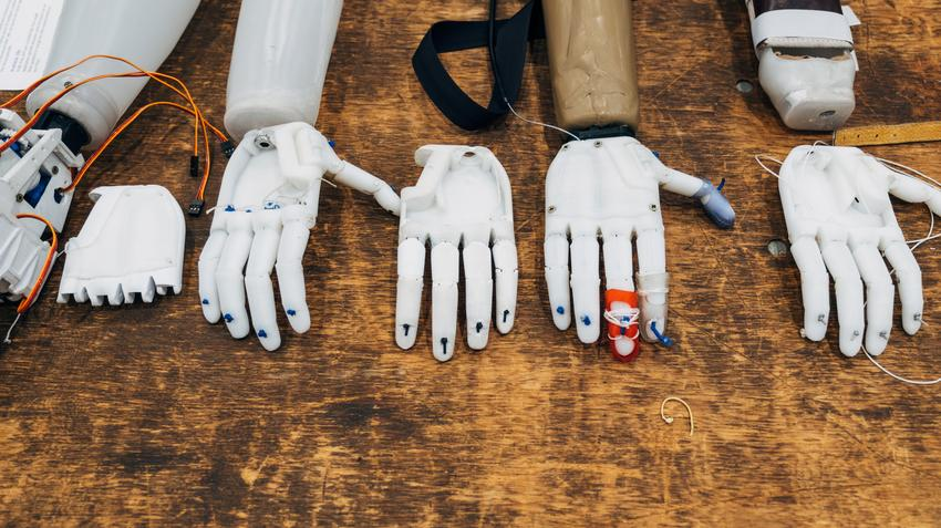 The Brain Can Adopt Prosthetics As Its Own, Study Says - Using electric brain stimulation, researchers tricked people into accepting a rubber hand as part of their body.