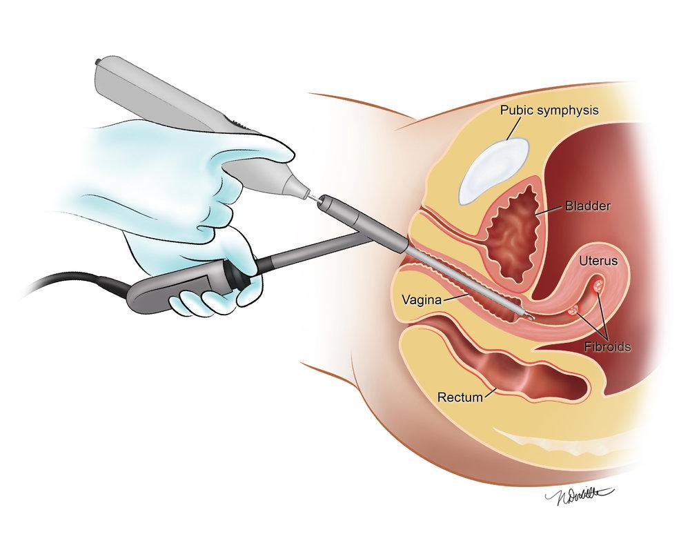 Gynecology Device