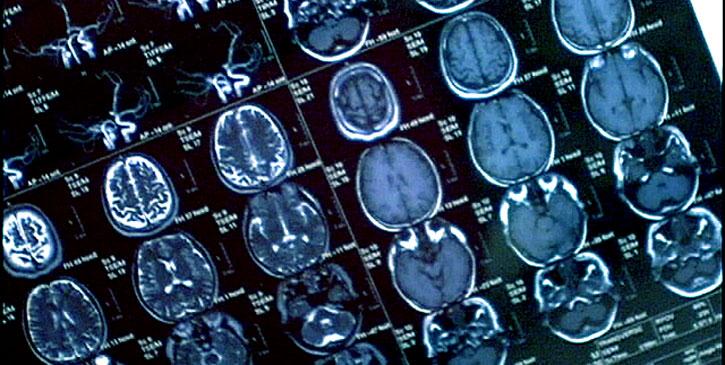 Il cervello di Kojima. No, sul serio.