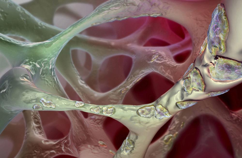 Trabecular Bone