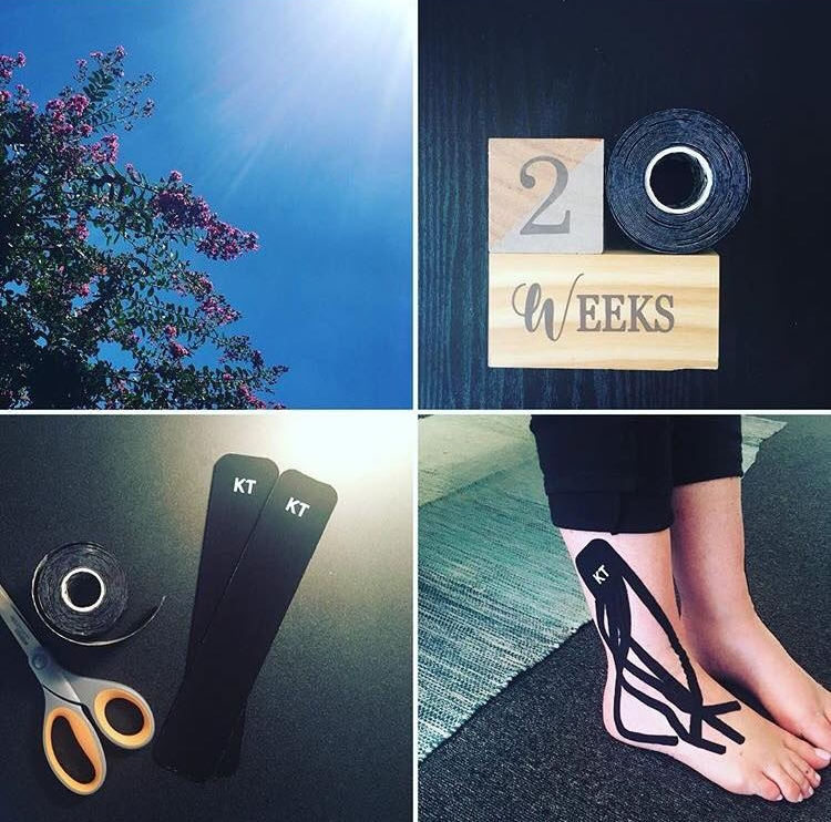 kinesio tape for swelling during pregnancy.jpg
