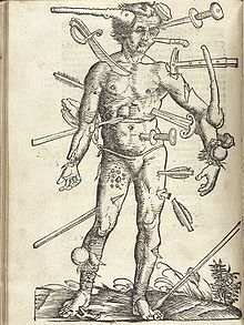 From Wikipedia's page on battlefield medicine. Illustration from 1517 by Hans Wechtlin. Lots o' weapons in this guy.