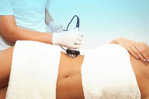 Ultrasound fat cavitation procedure melts away fat