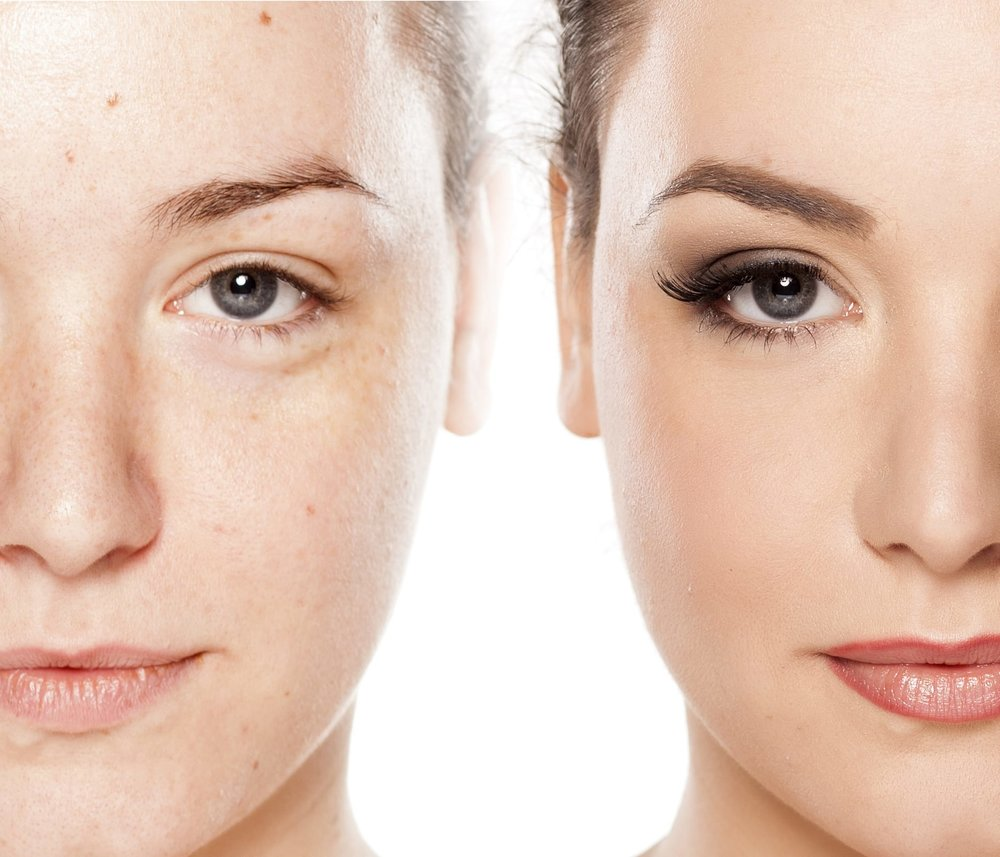 Microdermabrasion vs Chemical Peel.jpg