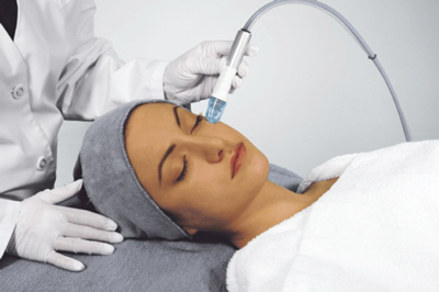 microdermabrasion london ontario blackfriars salon and spa