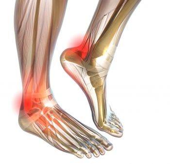 Pioneer Podiatry - Achilles Tendon Pain