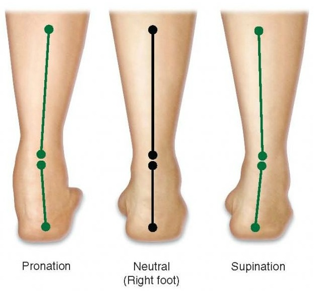 21552c6f78 Pioneer Podiatry - Flat Feet, Collapsing Arches, Over-Pronation ...
