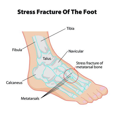 stress_fracture_feet.jpg