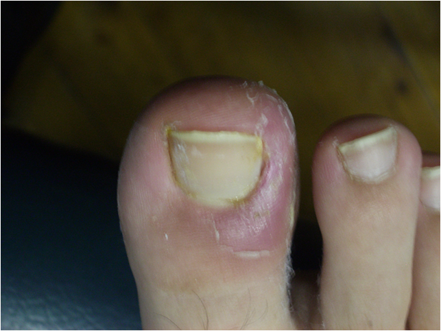 toenail before.png