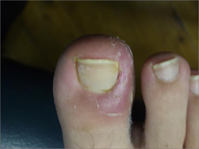 toenail before.png