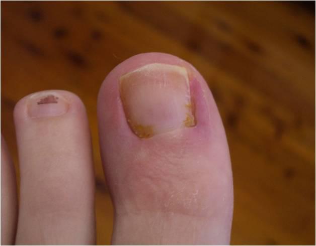 toenail after.jpg