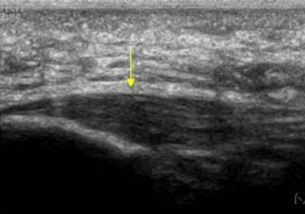 Diagnostic Ultrasound- Useful to confirm thickening of the plantar fascia in plantar fasciitis.