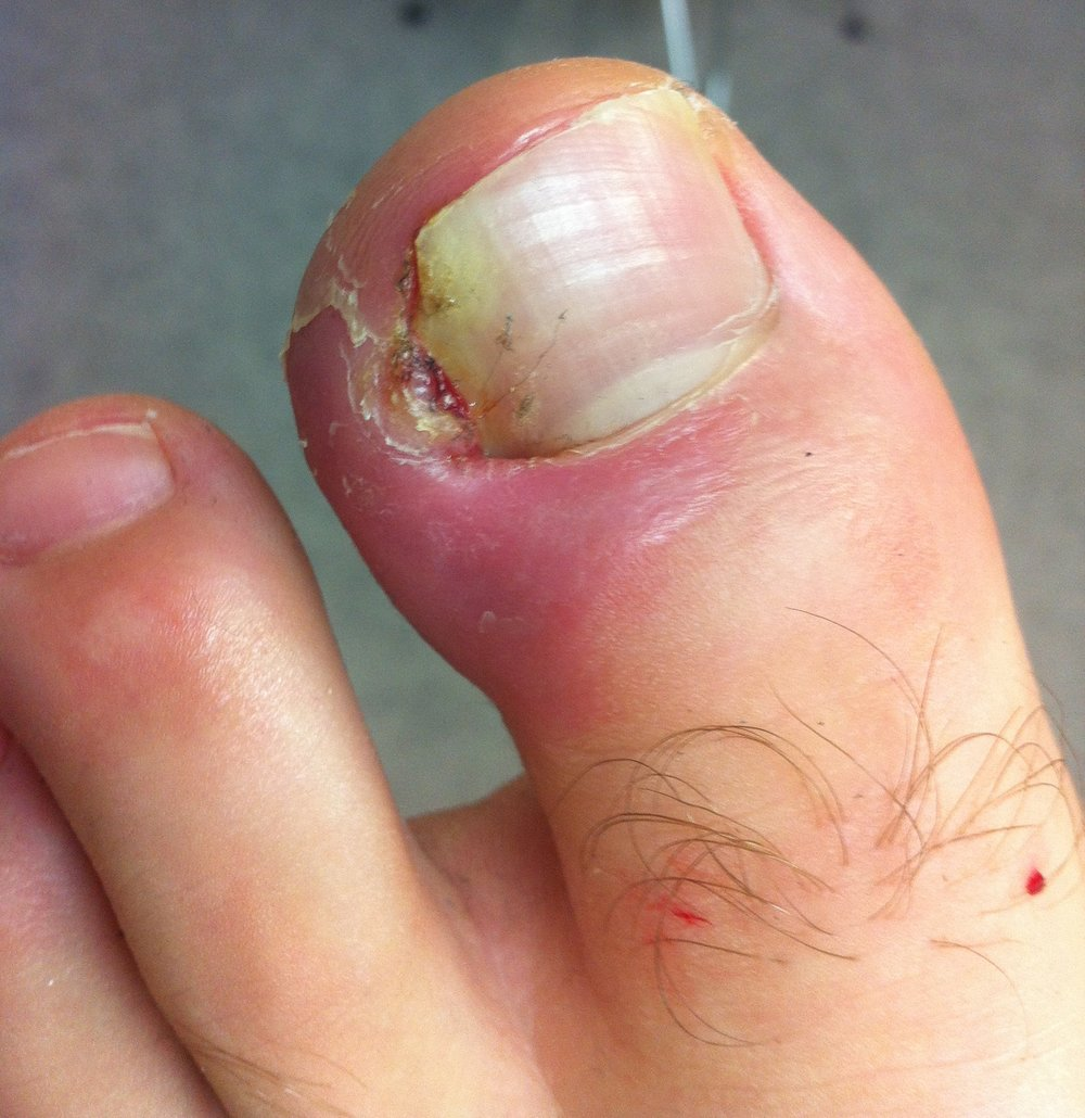 ingrowing nail1.jpg