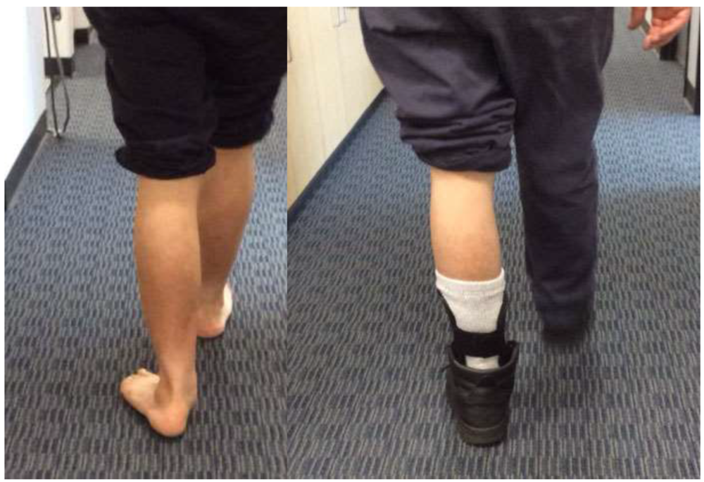 Before and after gait stills, with the Richie Brace. Note: Obvious improvements in frontal plane foot position, and this patient was able to walk and work pain free almost immediately with this brace.
