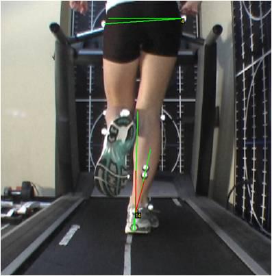 gait-example3.jpg