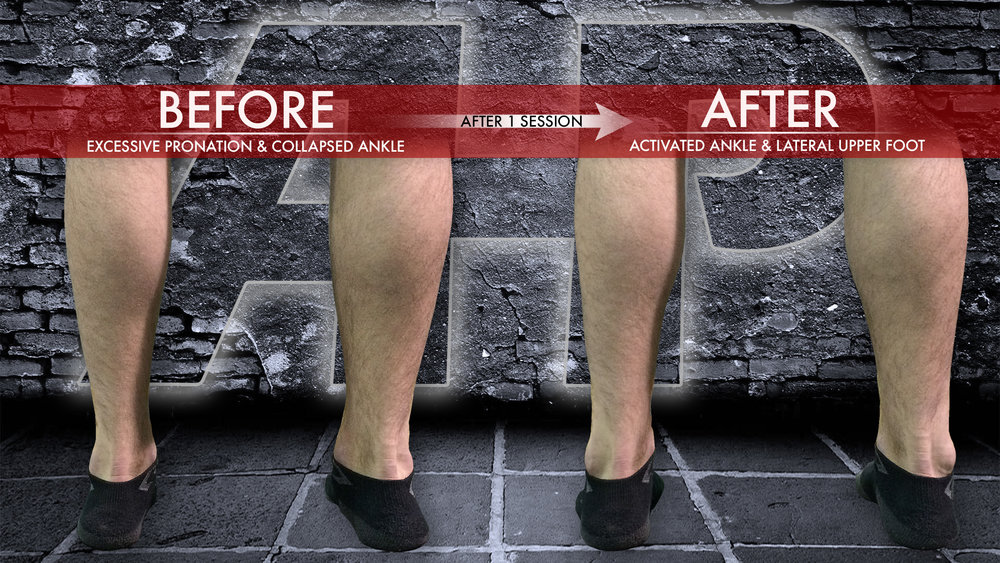 Before and After Foot & Ankle Photo.png
