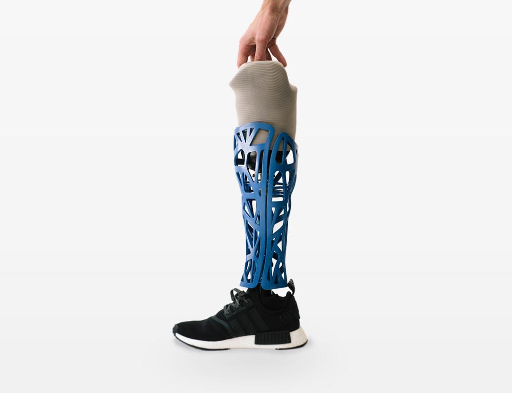 Custom Form Prosthetic. Image source: https://honepd.com/