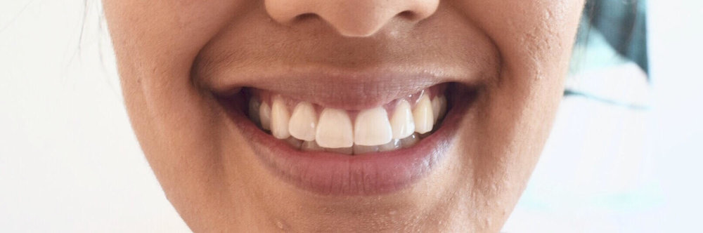Smile Brilliant Review - At Home Whitening System