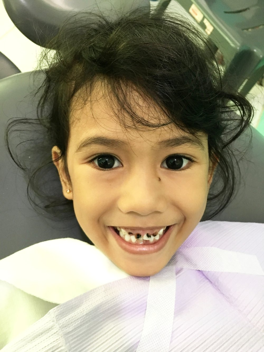 Child with painful cavities on her front teeth.