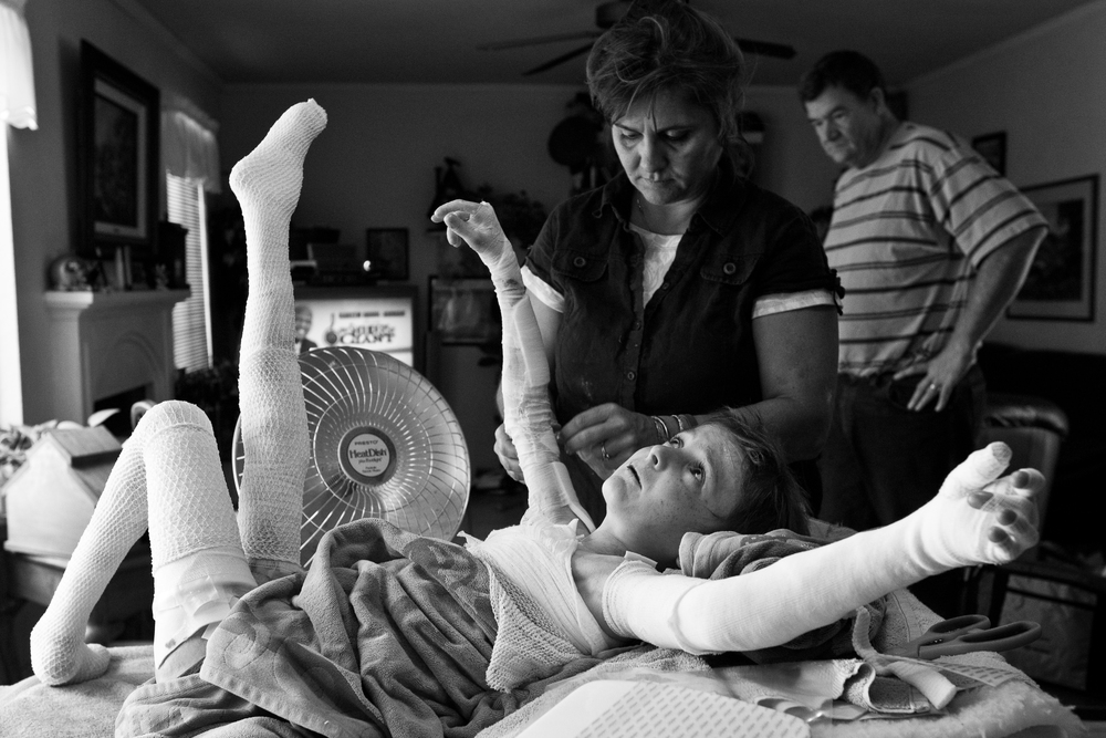 May 28, 2008 - Newman, California USA - Garrett Spaulding, 12, holds a very uncomfortable position while his mom changes the bandges around his shoulders. Born with Epidermolysis Bullosa, Garrett must have his bandages changed up to 3-times per week.
