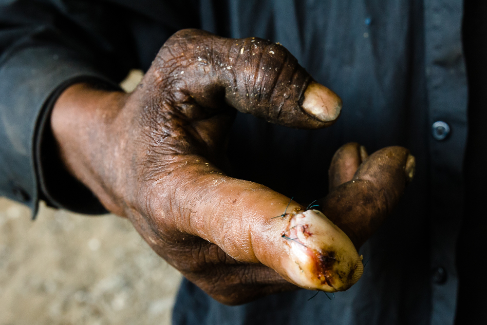 During a scrapping job in an abandoned factory, Boudreaux's finger was chopped off below the first joint. He was taken to the County hospital, where the surgeon did a hackneyed job of repairing his finger. Often is the case for the homeless at a county hospital.