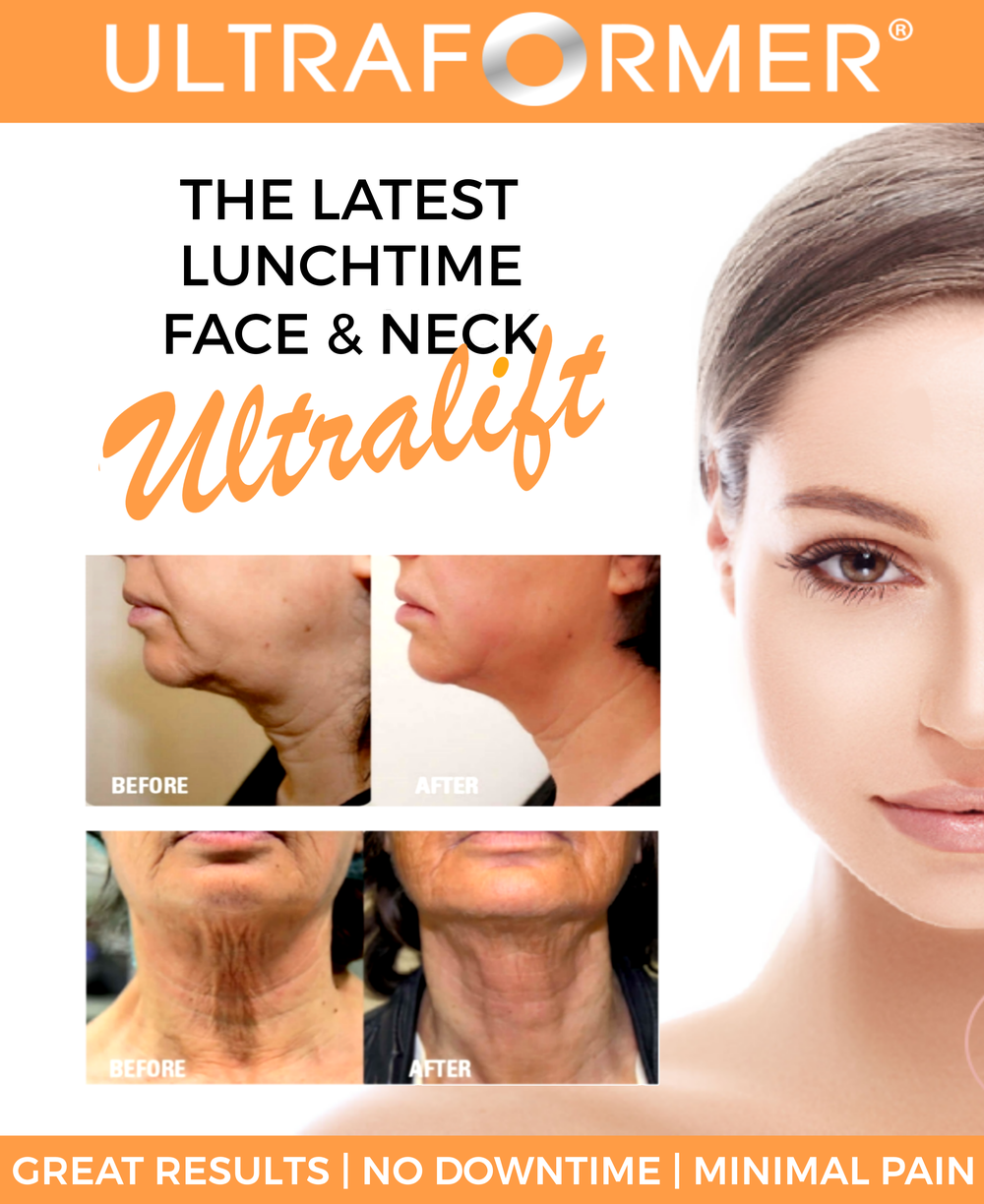 Current Ultraformer special $1950 (3800 RRP) to the face and neck.