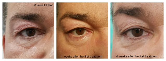 Blepharoplasty_4_man's eyes..jpeg