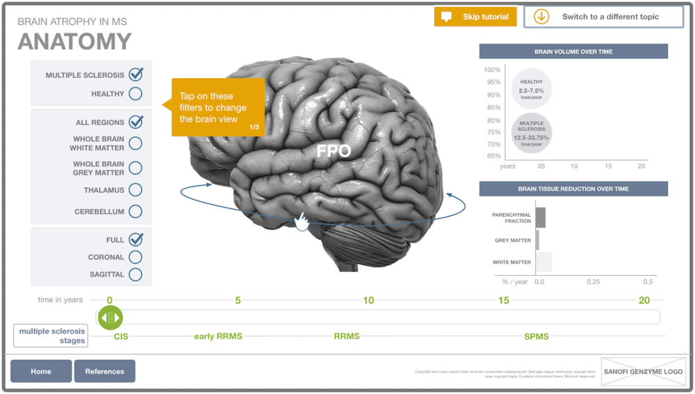 Brain Atrophy Touchscreen App — ADORA • TAM