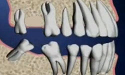 HORIZONTAL TOOTH MIGRATION