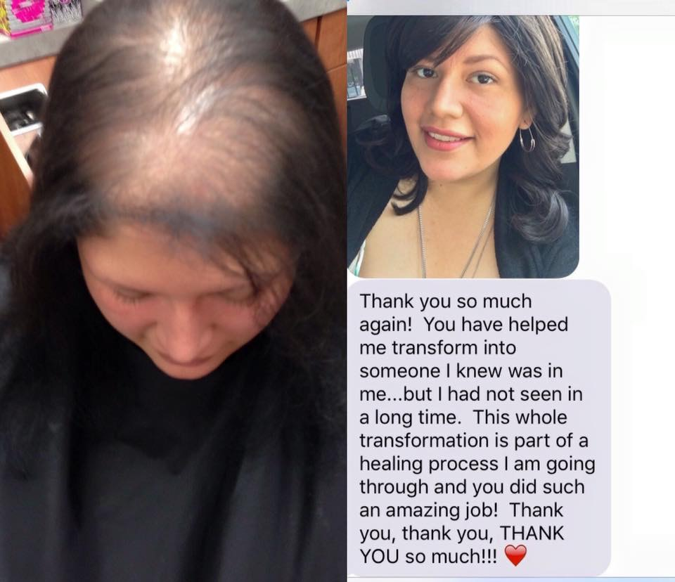 - This young woman (in her mid-twenties) came to me for help with her hair thinning problem. I started her off in a Hairdreams Volume+ System. She was having a hard time adjusting to having a system in place 24/7. She came back to me and we talked; together we came up with a solution to better suit her needs and lifestyle... leading us to a Jon Renau wig. Her new best friend is