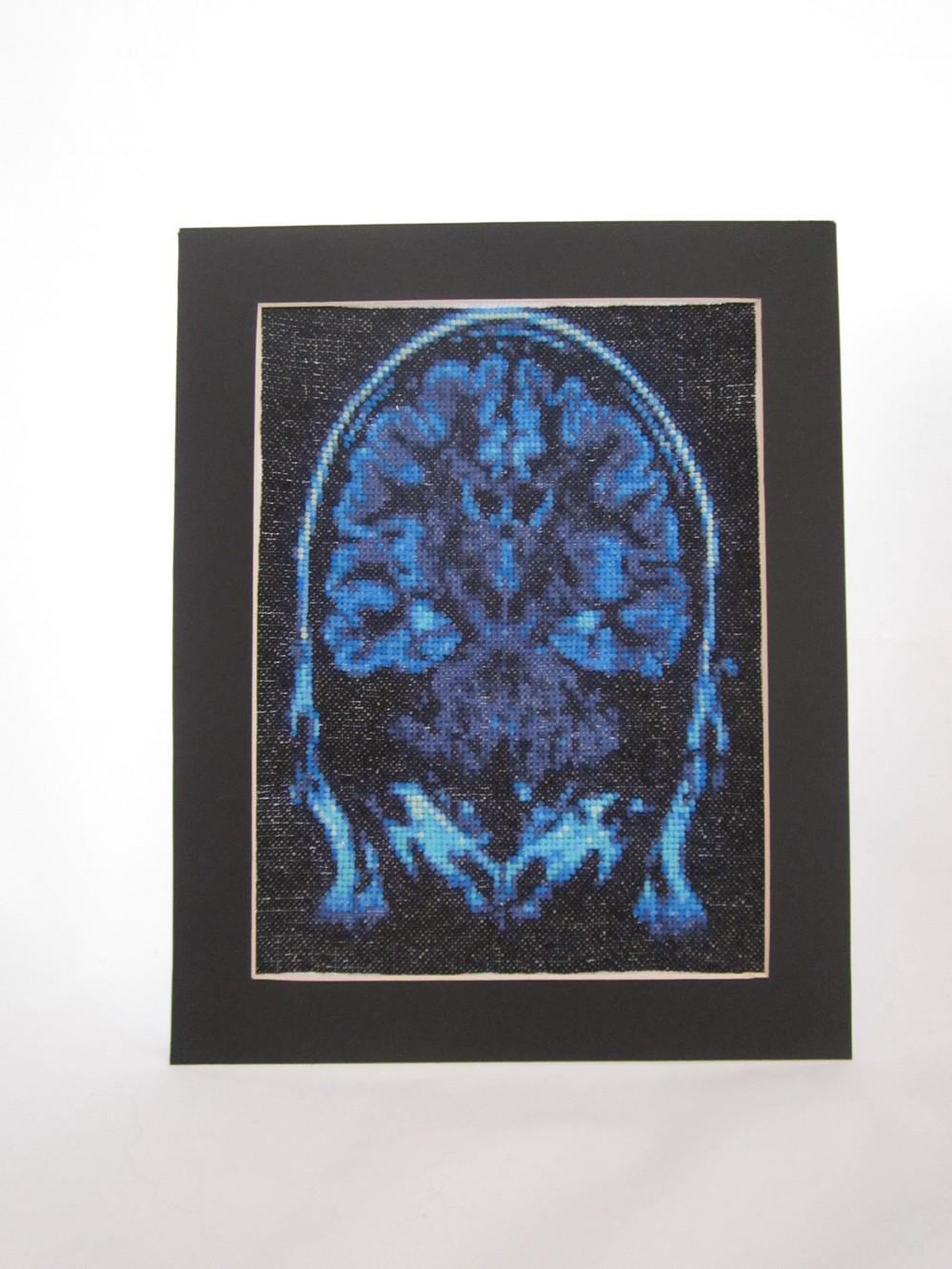Small Brain MRI X Stitch 1.JPG