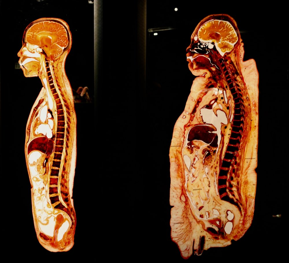 Obesity Revealed: This longitudinal body slice shows a severe degree of obesity. Here, the subcutaneous fatty tissue is notably thickened. But also the fat inside the abdominal cavity is considerably increased. This person weighs 300 lbs.  Photo by DJB for TBOT