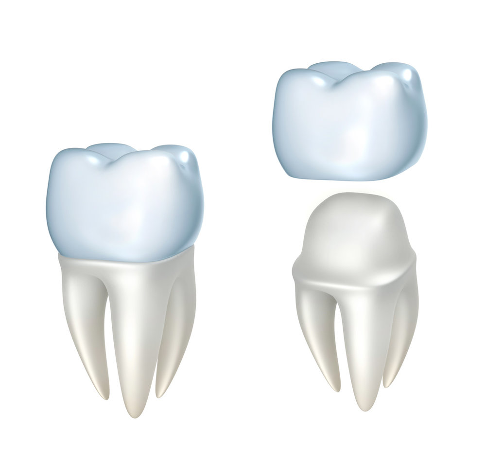 greenville-sc-dentist-porcelain-crowns.jpg