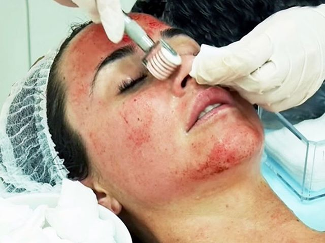I had a client come in and tell me she paid $250 for microneedling. If they are using a roller it's definitely not worth that price. Microneedling rollers cause a lot of damage to the skin because the technician/esthetician has to apply pressure manually vs. a microneedling pen does it on its own. Also if there pressure isn't consistent you'll get scraping on the skin which is unnecessary and not beneficial to your skin health. I didn't know people still used rollers so I thought I would share my opinion.
