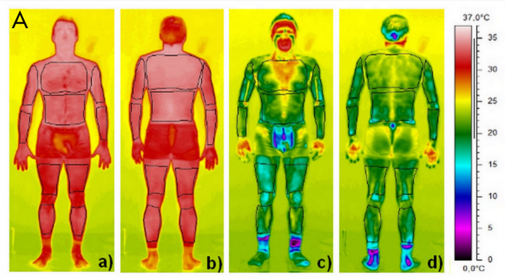 Group A) Whole Body Cryo Room Results   Thermograms obtained immediately before (a,b) and after (c, d) a Whole Body Cryo session.