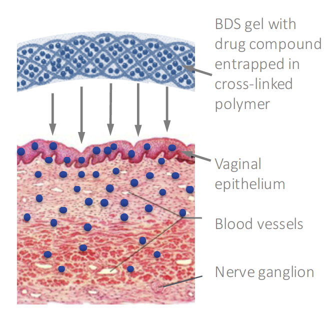 Juniper's BDS proprietary polycarbophil gel adheres to vaginal epithelial tissue for controlled and sustained release of drug over time until the BDS formulation is discharged during normal cell turnover