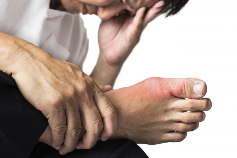 Gout is caused by an over production or under excretion of uric acid, leading to the formation of needle-like crystals in joints and soft tissues, and severe pain due to inflammation