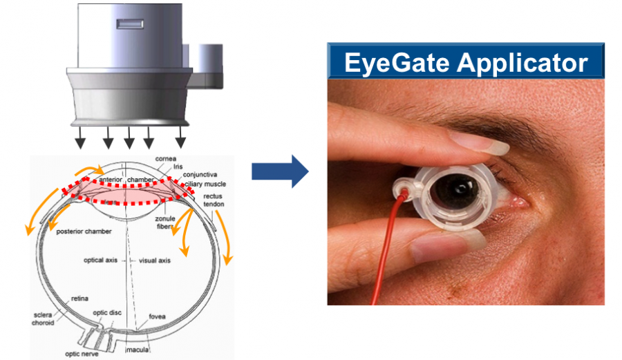 According to EyeGate, electrolysis of water molecules occurs at the surface of the electrode in the applicator, which exerts electro-repulsion on the drug molecules, driving them into the ocular tissues