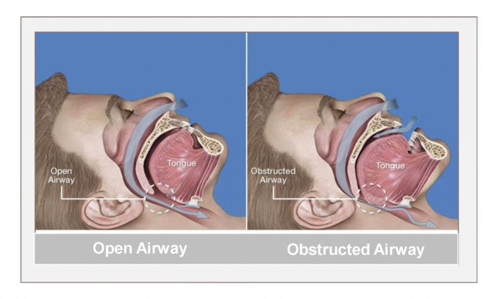 Obstructive sleep apnea is the most common type of sleep apnea and is caused by an obstruction of the upper airway, originating in the palate or the tongue