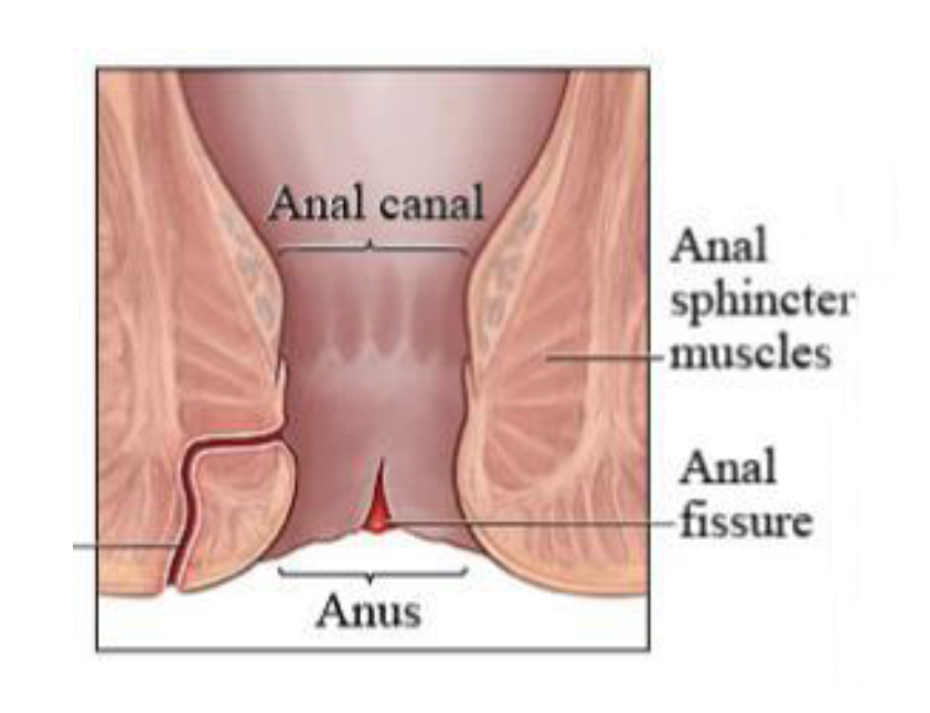 Preparation h for anal fissure